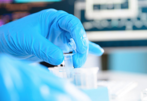 Blue Glove and Protein Expression